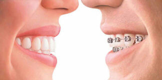 Braces-and-Invisalign-Treatment