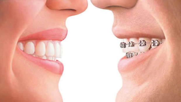 5 Things Everyone Should Know When Considering Braces Braces-and-Invisalign-Treatment