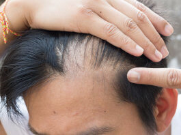 Taxotere-Lawsuits-Hairloss