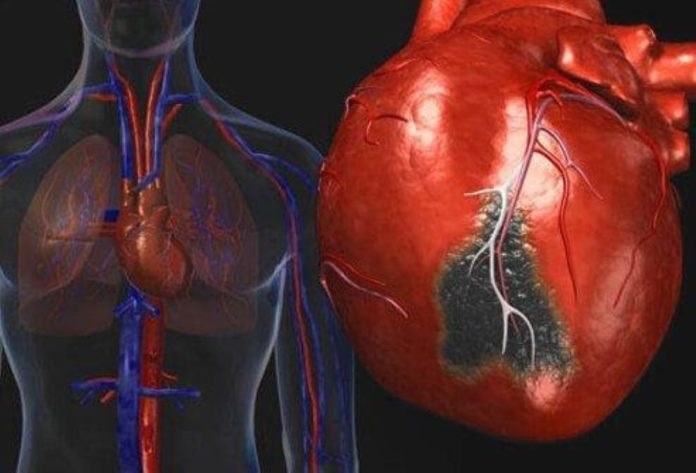 The Most Common Cardiovascular Disorders